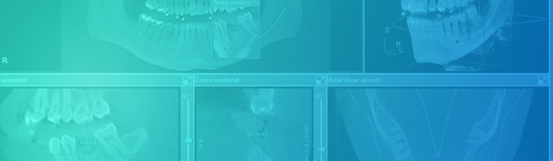 radiografias-3d-revez